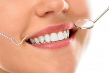profilaxie-dentara 1